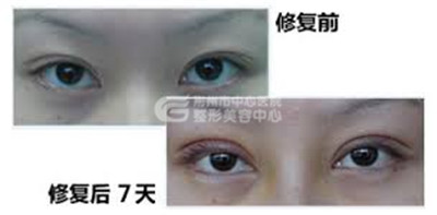 双眼皮修复手术的原则和术后护理有什么?