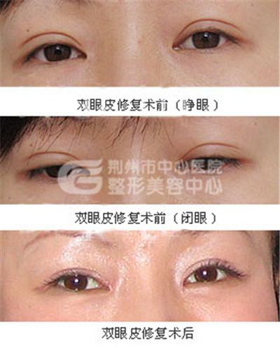 双眼皮修复术前准备有什么?
