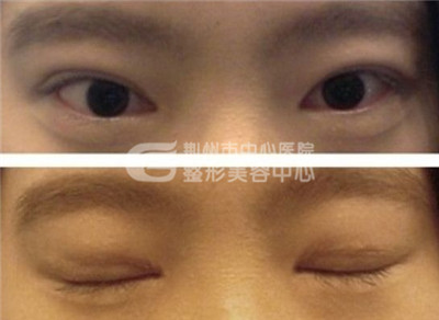 双眼皮修复术修复眼部的缺陷