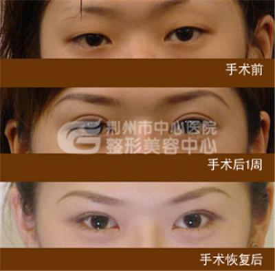 荆州双眼皮修复哪里好