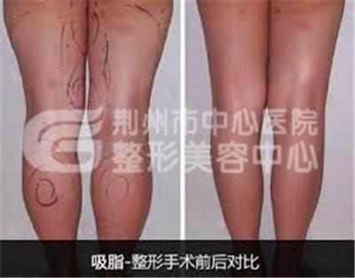 大腿吸脂减肥术前需要做哪些准备