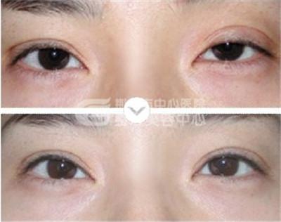 双眼皮修复手术的注意事项有哪些?