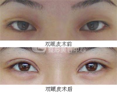 埋线双眼皮修复的价格
