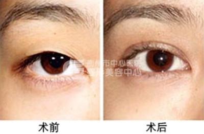 双眼皮修复手术怎么样