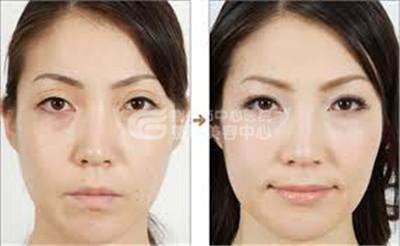 切开双眼皮修复术过程是什么