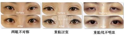 高分子双眼皮修复的方法
