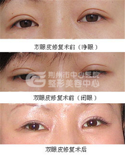 双眼皮修复手术的不同情况