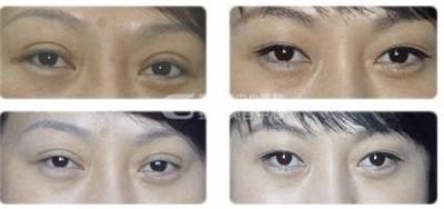 切开双眼皮修复的手术失败的情况有哪些