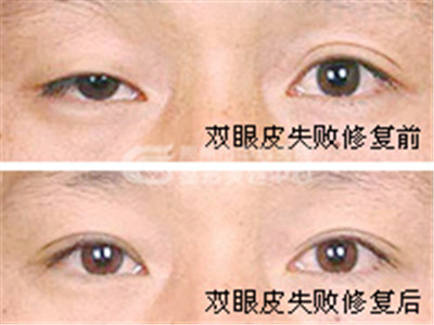 双眼皮修复的原则有哪些