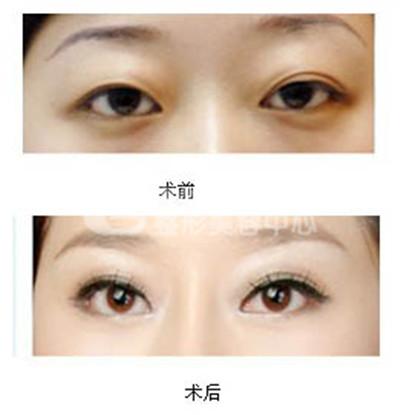 双眼皮修复的原则