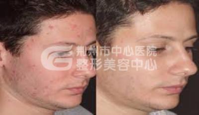 荆州激光祛痘有什么优势?
