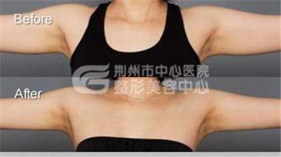 荆州中心医院手臂吸脂手术的优点?
