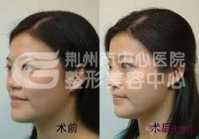 假体隆鼻手术后遗症如何避免?