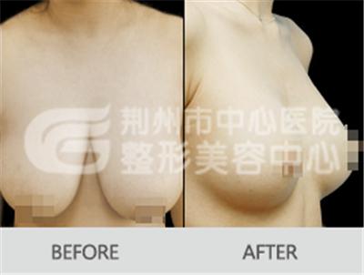 乳房下垂矫正术的方法是怎样的呢?