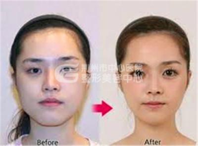 荆州微整形专家为你解析瘦脸针价钱