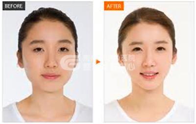 荆州哪里可以打瘦脸针
