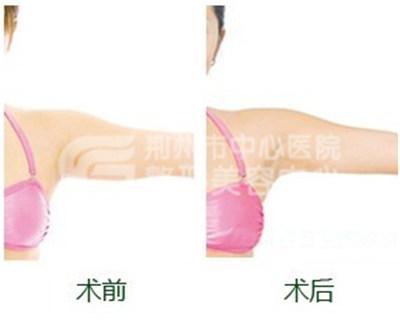 手臂吸脂术塑造完美身材