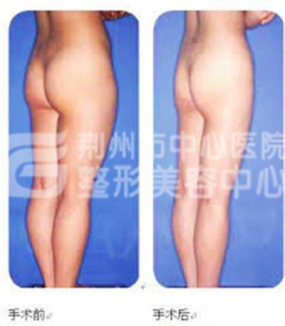 大腿吸脂减肥部位都有哪些