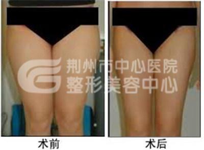 大腿吸脂减肥方法是什么