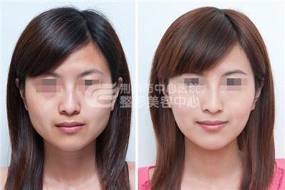 荆州注射瘦脸针整形美容医院