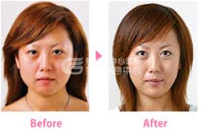 瘦脸针的效果为什么这么好?