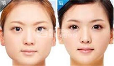瘦脸针注射瘦脸效果好吗?