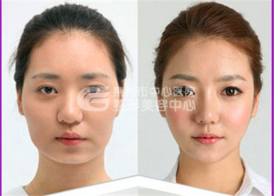 注射瘦脸针术使您的瘦脸目标轻松实现