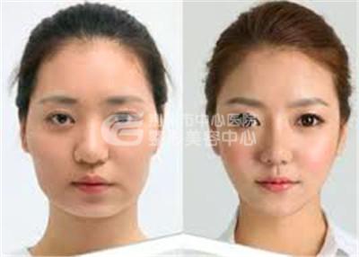 注射瘦脸针术做时髦时尚的美眉
