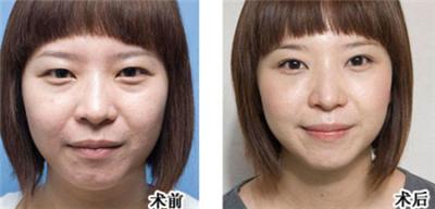 激光去眼袋术后护理