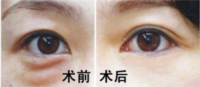 激光去眼袋术后怎么护理