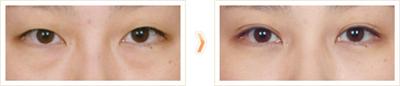 你了解自己的眼袋类型吗?