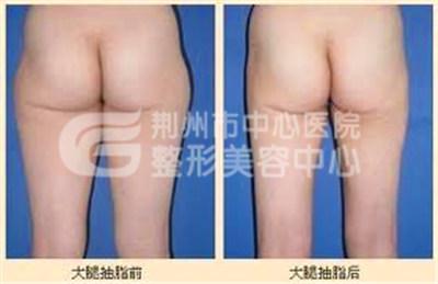大腿吸脂有危险吗