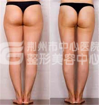 做大腿吸脂术安全吗?