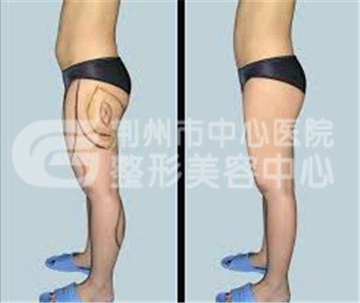 大腿吸脂的过程
