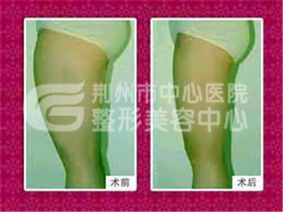 大腿吸脂手术的效果如何