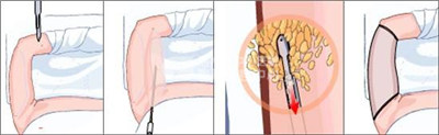 手臂吸脂术重现性感美臂