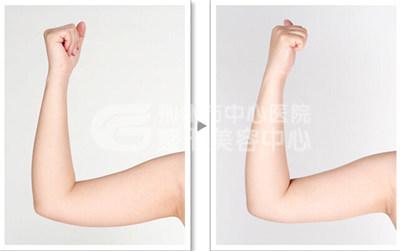 手臂吸脂术尽显纤细双臂