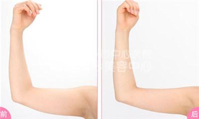 手臂吸脂术使美好身材快速展现