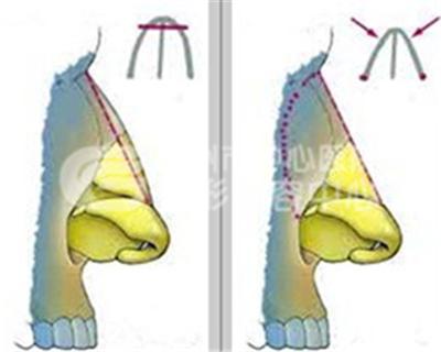 驼峰鼻矫正手术