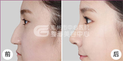 驼峰鼻手术治疗的六种矫正方式