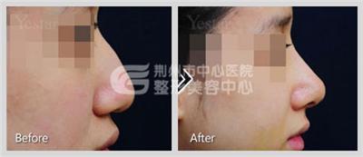 驼峰鼻矫正术前要做好哪些充足准备