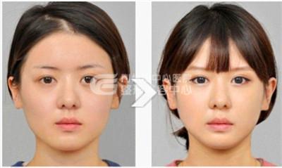 注射瘦脸针术后几天可以看见效果