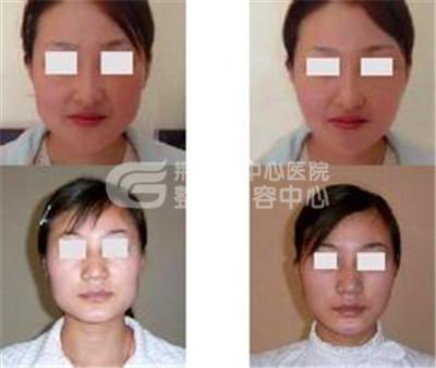 注射瘦脸针术*符合哪些条件
