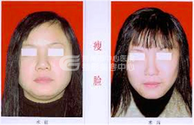 注射瘦脸针术的优点很显著