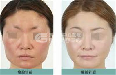 注射瘦脸针术后应该注意哪些