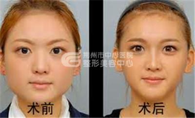 打瘦脸针安全吗