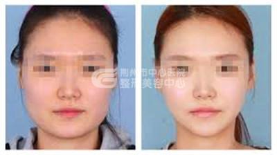 注射瘦脸针术适合哪些爱美者选择