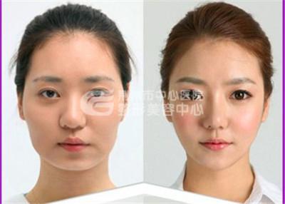 瘦脸针的副作用