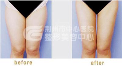 大腿吸脂有危害吗