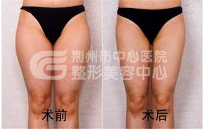 大腿吸脂手术效果怎么样